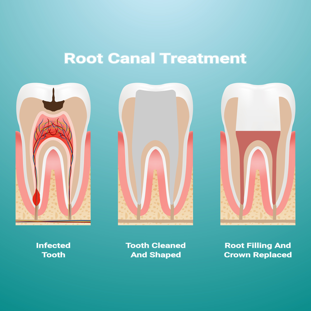 Pulpitis. Root Canal Therapy. Infected Pulp Is Removed From The Tooth