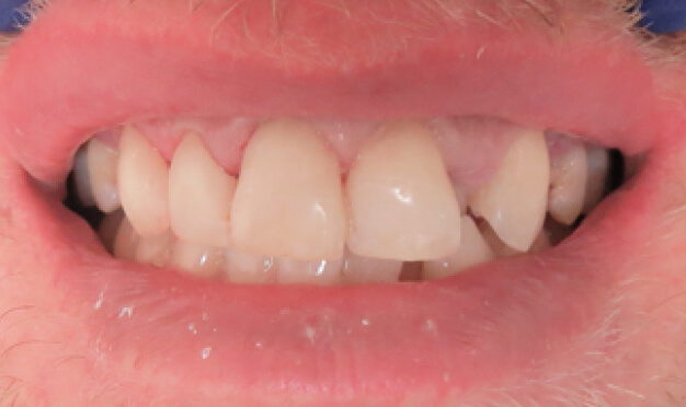 Closeup of a patient's mouth after treatment at River Birch Dental in Centuria