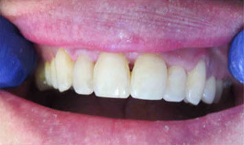 Closeup of a patient's mouth after anterior composites at River Birch Dental in Centuria