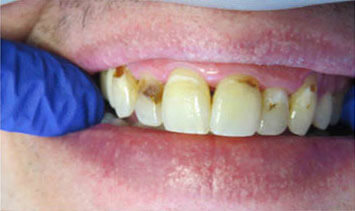 Closeup of a patient's mouth with multiple areas of decay and discoloration before treatment at River Birch Dental in Centuria