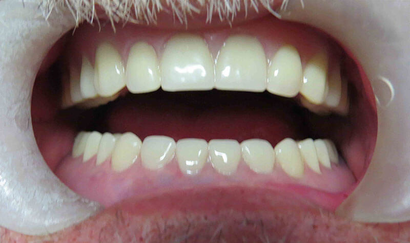 Closeup of a patient's mouth after full mouth extractions and immediate denture, Teeth In One Day, at River Birch Dental in Centuria