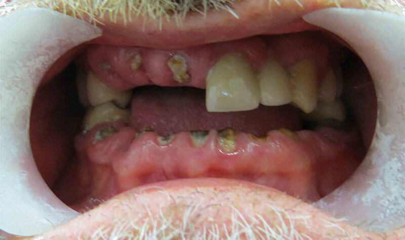 Closeup of a patient's mouth with worn down and decayed teeth before extractions and immediate denture, at River Birch Dental in Centuria